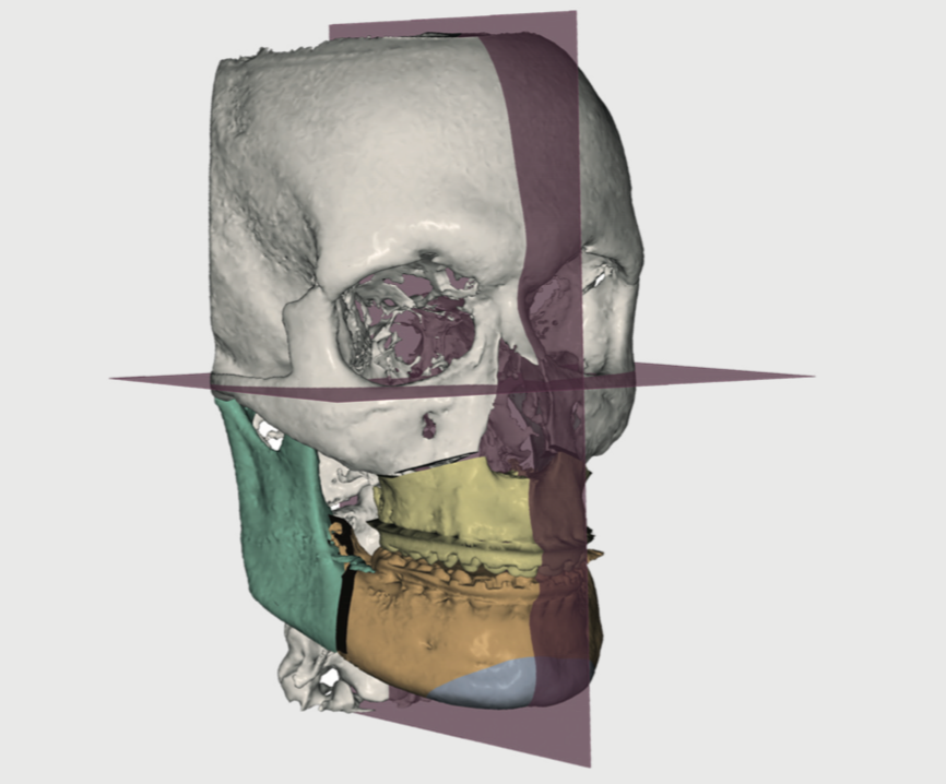 3D Virtual Planning in Orthognathic Surgery